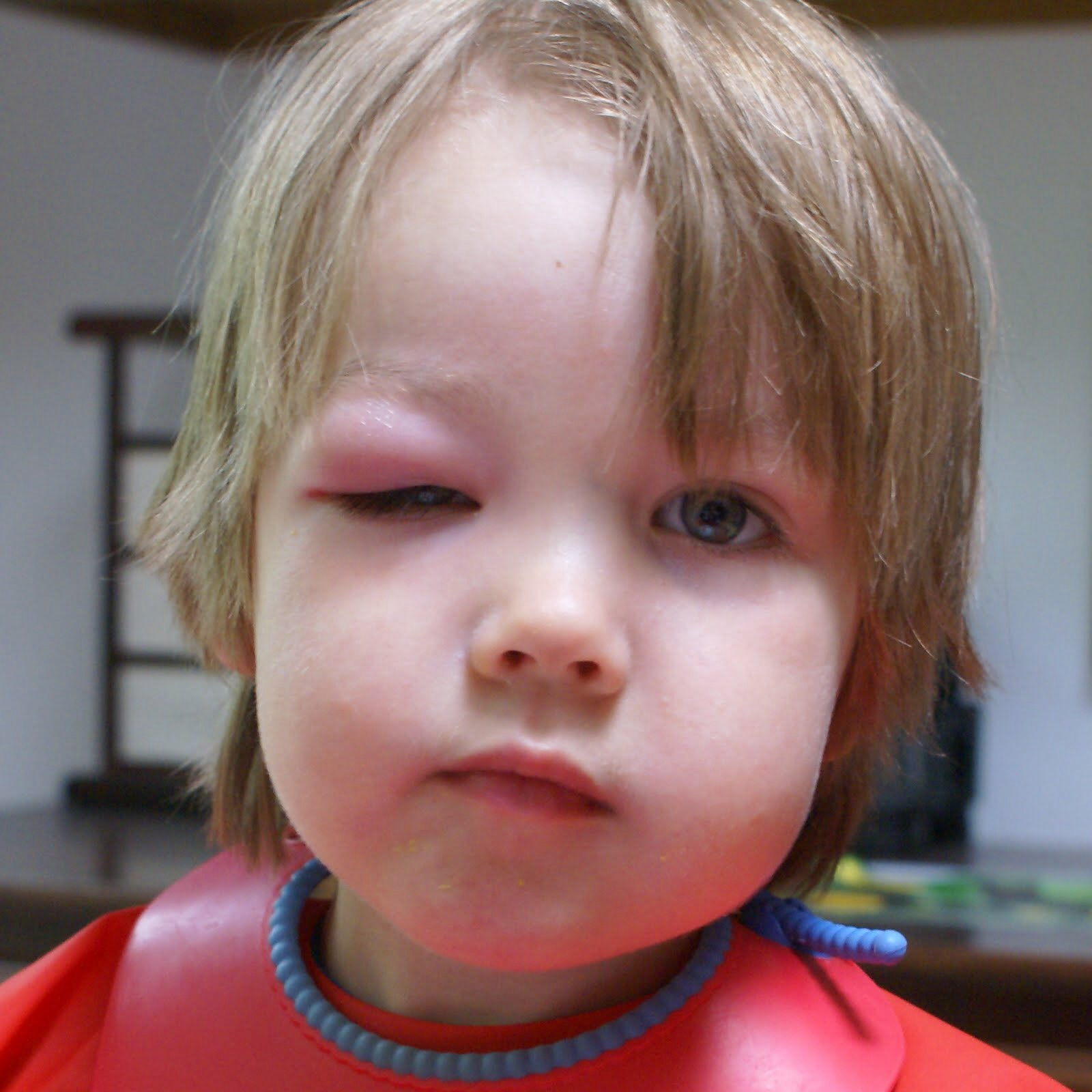 Mosquito Bite Dog Eye